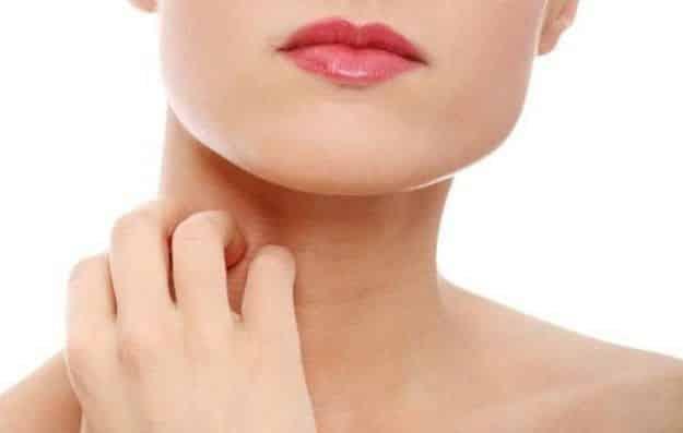 Psoriasi del viso: depurarsi per combatterla