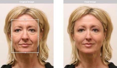 Ringiovanire il viso in modo naturale