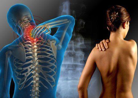 Dolori muscolari prova artiglio del diavolo e erbe antinfiammatorie