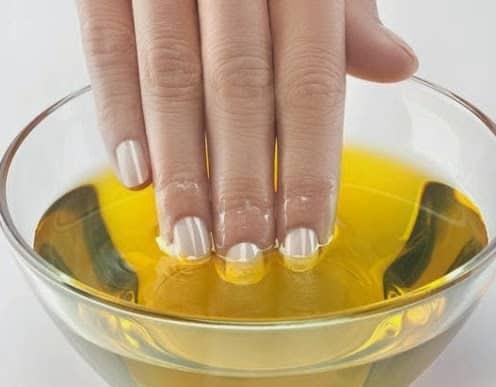 Malattia di unghie su mani non un fungo