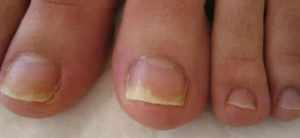 Soluzione per unghie ekzoderit