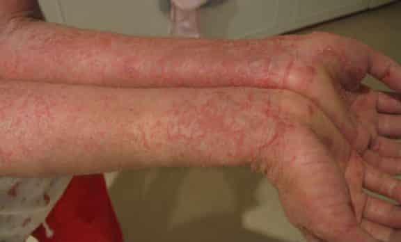 Allergia al nichel
