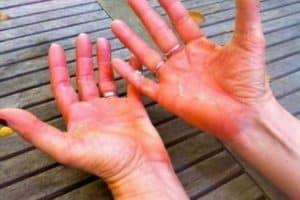 Disidrosi a mani e piedi: Cause e rimedi