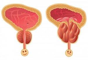 Ipertrofia prostatica – sintomi e rimedi
