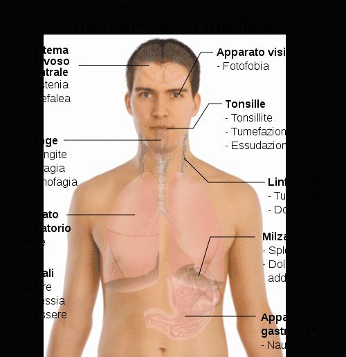 Mononucleosi sintomi