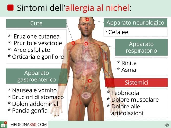 Allergia al nichel sintomi