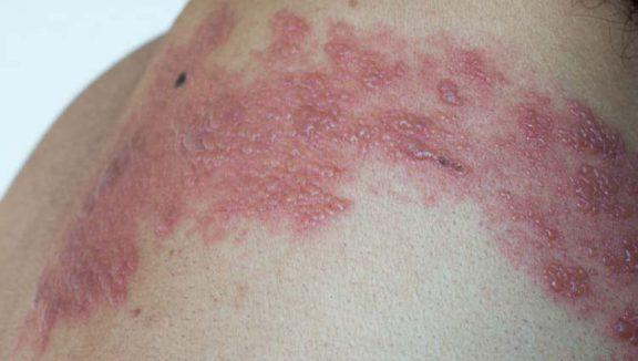Herpes Zoster sintomi