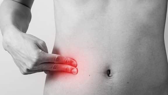 Appendicite sintomi