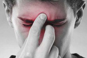 Sinusite cause, sintomi e rimedi naturali