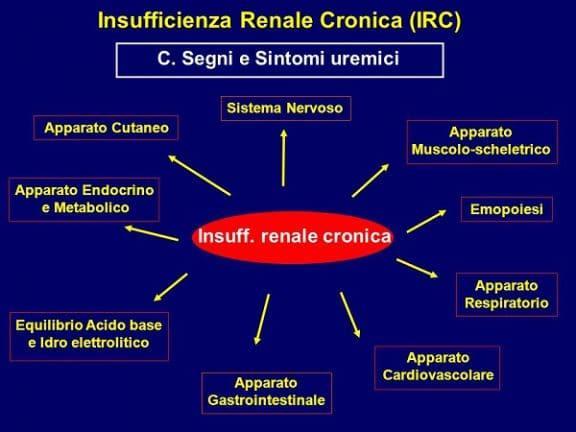 Insufficienza renale sintomi