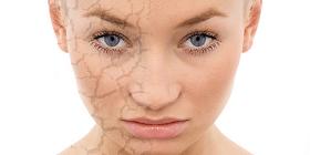 Pelle secca viso