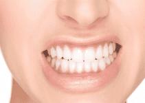 Digrignare i denti