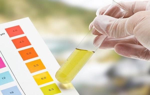 sangue nelle urine