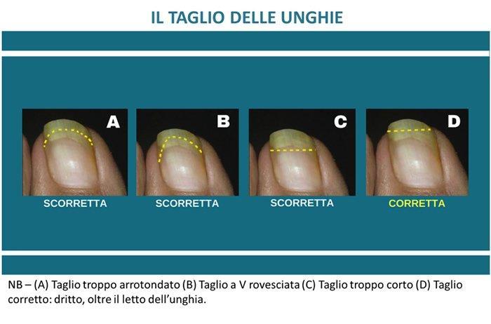 Come prevenire le unghie incarnite
