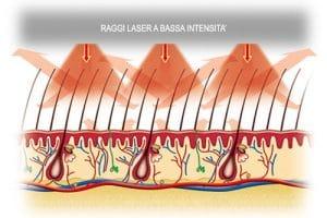terapia laser per capelli