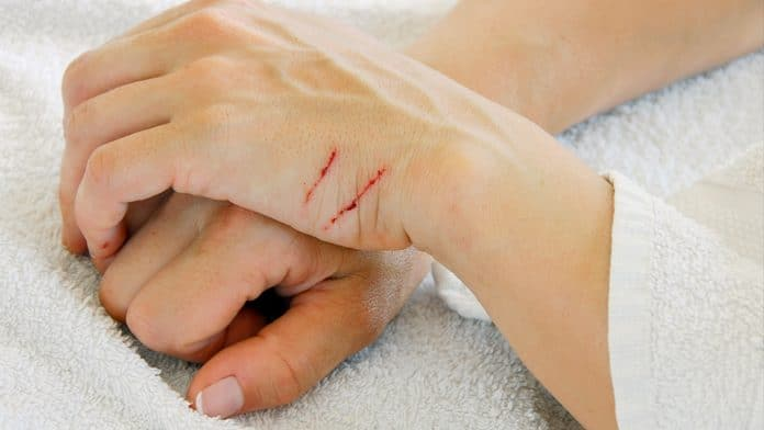 Bartonellosi sintomi della malattia da graffio del gatto
