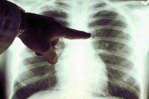 trapianto di polmoni fumatori