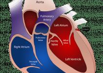 vena aorta operazione