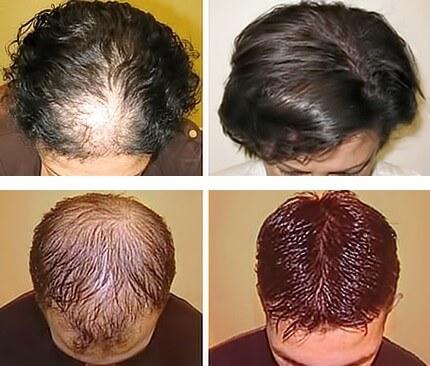 Laser per la ricrescita dei capelli