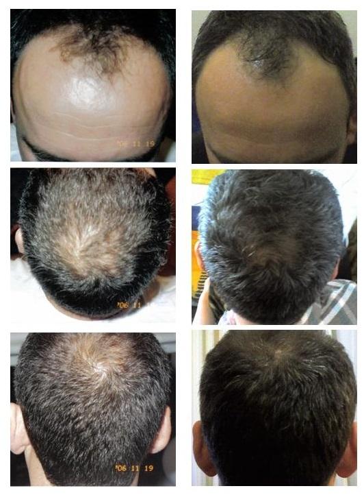 ricrescita capelli con Recapin